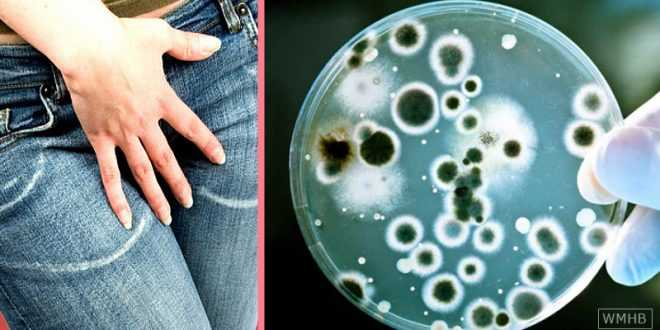 candida-yeast-infection
